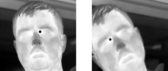 Naive approach for eye canthus detection