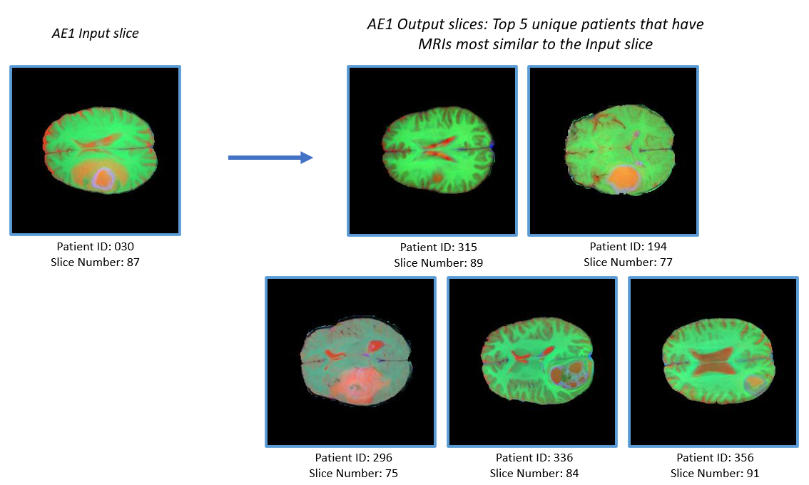 Figure 7:(a) Example Inputs and outputs to AE1. The output consists of MRI slices of 5 unique patients having MRIs most similar to the input slice.