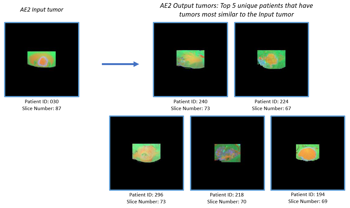 Figure 7: (b)ExampleInputs and outputs to AE2. The output consists of tumor slices (cropped from the MRI slices) of 5 unique patients having tumors most similar to the input tumor.